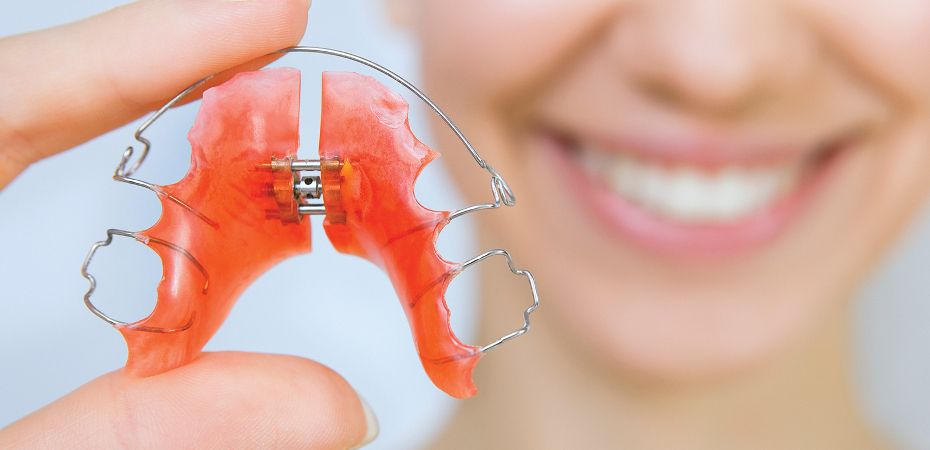 Close up of woman holding retainer with two fingers